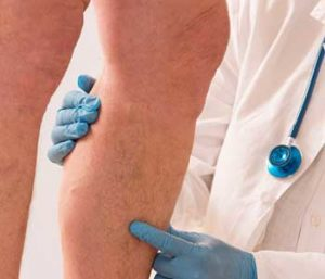 Sclerotherapy for spider and varicose veins near Cobble Hill, NY