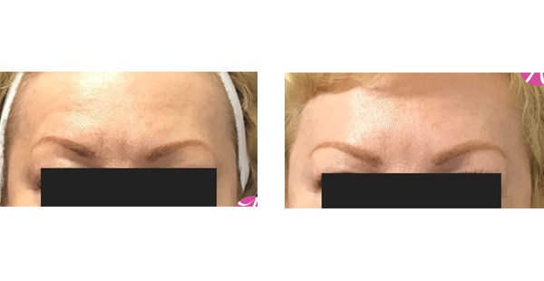 Before After Case - 8