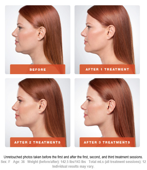 Kybella Treatment Before and After 1 Art of Natural Beauty Center