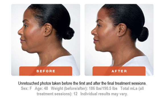 Kybella Treatment Before and After 3 Art of Natural Beauty Center