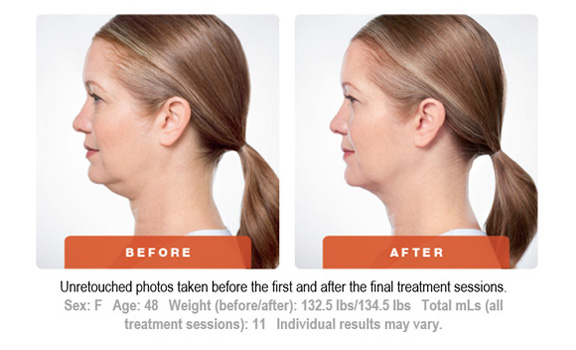 Kybella Treatment Before and After 4 Art of Natural Beauty Center