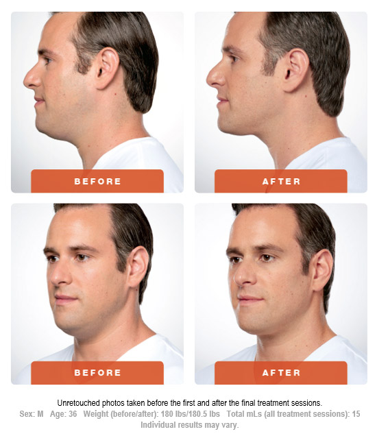 Kybella Treatment Before and After 2 Art of Natural Beauty Center